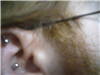 right ear, Top ones older, middles ones newest